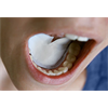 Additional images for DryDent Sublingual Large